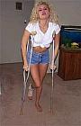 Michelle's Sprain 2