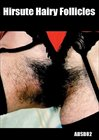 Hirsute Hairy Follicles