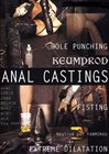 Anal Castings
